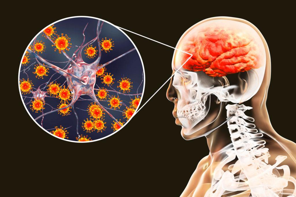 can covid cause neurological damage