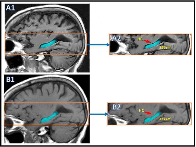 brain MRI for concussion rehabilitation and TBI