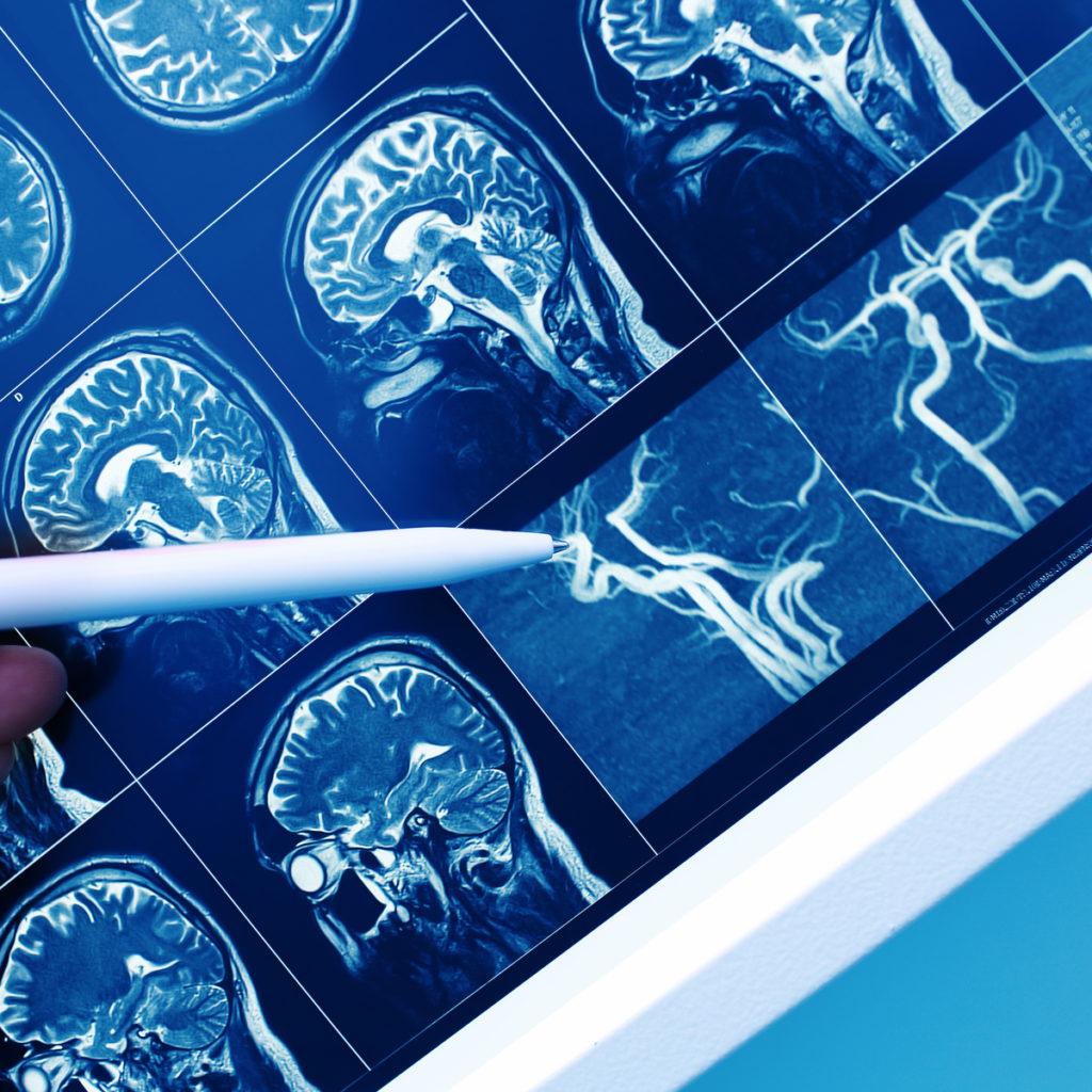 postcovid brain vascular system MRA